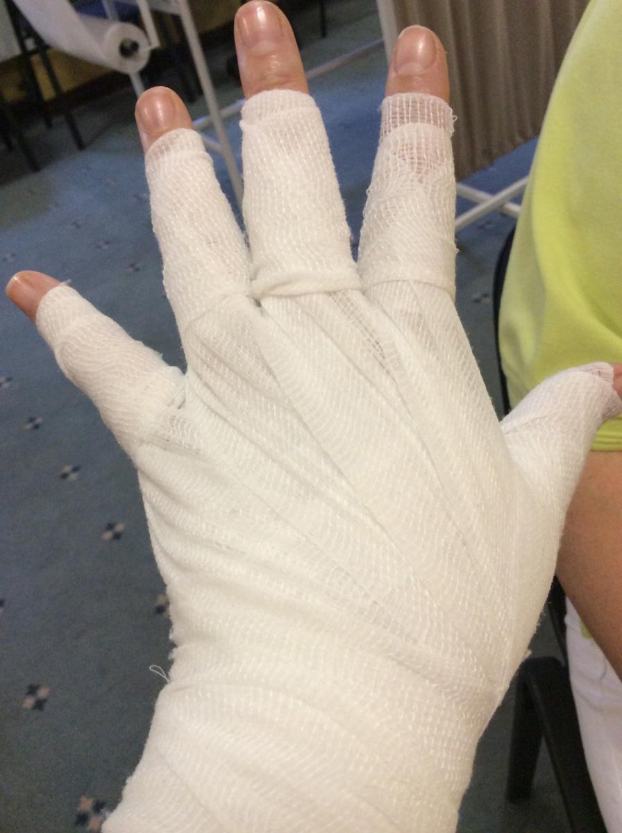 Nyiroködéma fáslizás kéz